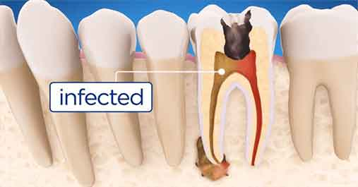 BEST ROOT CANAL TREATMENT IN SHARJAH & DUBAI