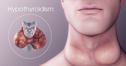 HYPOTHYROIDISM SIGNS-SYMPTOMS-TREATMENT