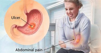PEPTIC STOMACH ULCER DISEASE: CAUSE & SYMPTOM